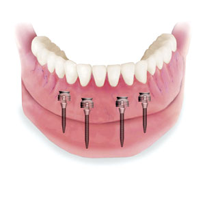 Minimally invasive Mini Dental Implants