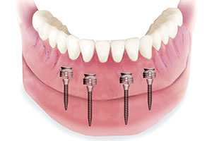 Implant-Supported Dentures with MDIs